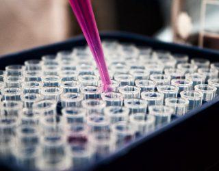 Covid-19: Wie der Transport von Impfstoffen zur nächsten Herausforderung für Flotten werden könnte