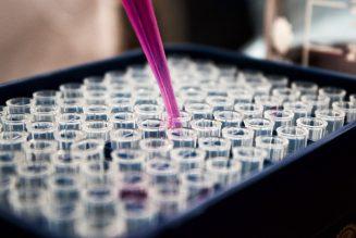 Duisport-Chef kritisiert Bundesregierung für Impfdesaster